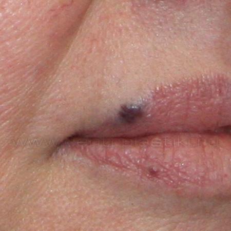 Фото разновидность половых губ шекелей