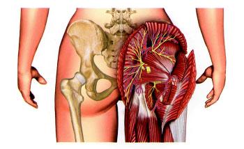На тренировке после становой тяги болит спина поясница