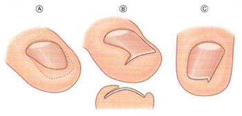 Рис. 1. Виды вросшего ногтя у детей.  В - Врожденная гипертрофия внутреннего ногтевого валика.