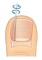 Длительно существующее хроническое воспаление в области ногтевого валика приводит развитию грануляционной...