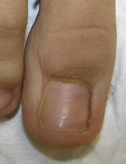 Йодинол от грибка ногтей на руках